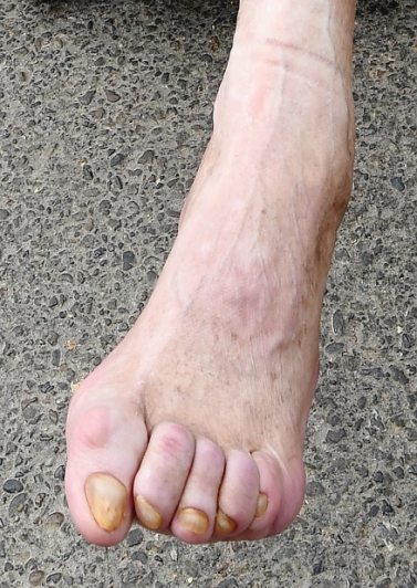 ballet toe 1